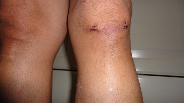 板 損傷 痛み 半月 手術 後