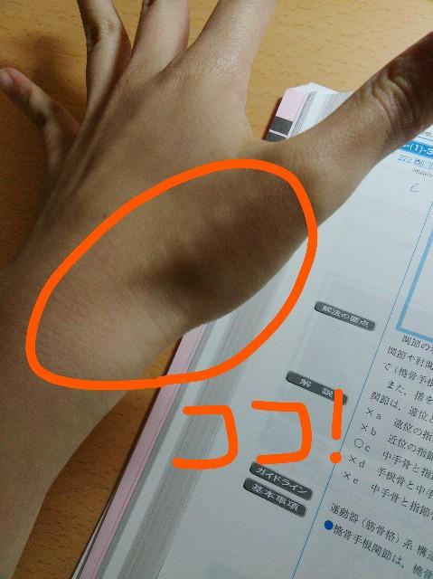 f:id:jinhee:20170114132500j:image