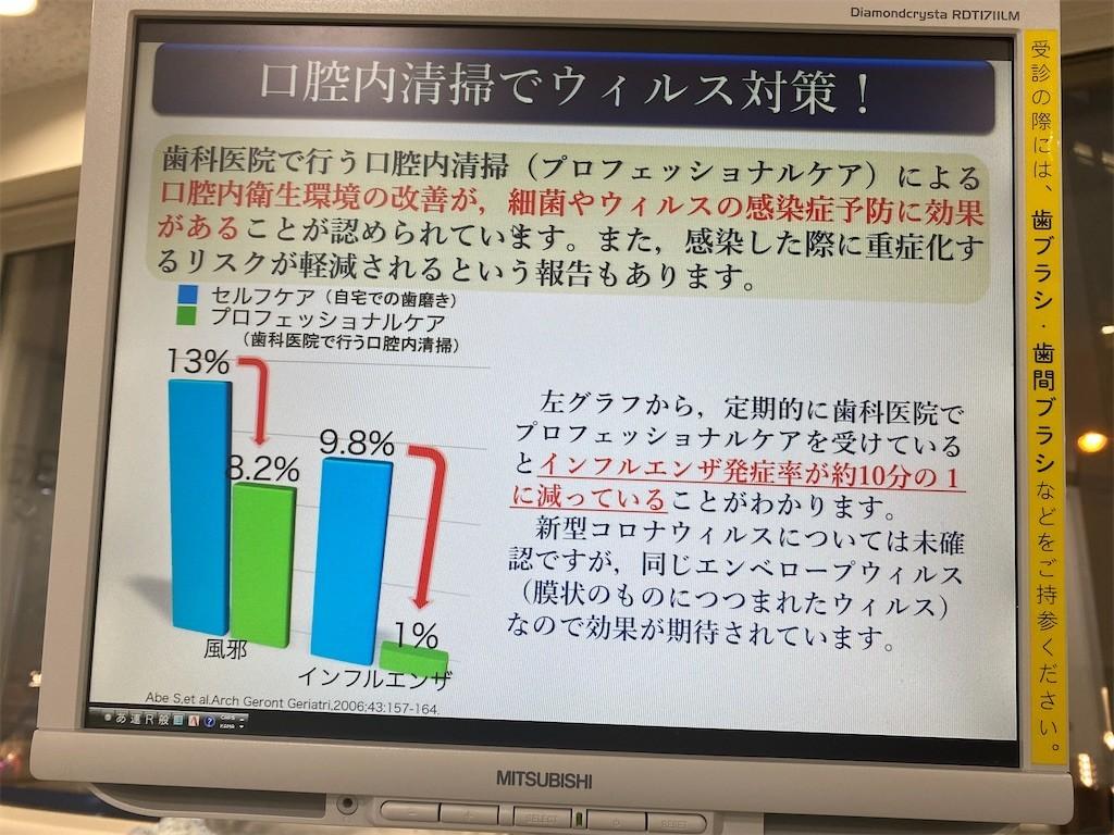 f:id:jironakayama:20201128105514j:image