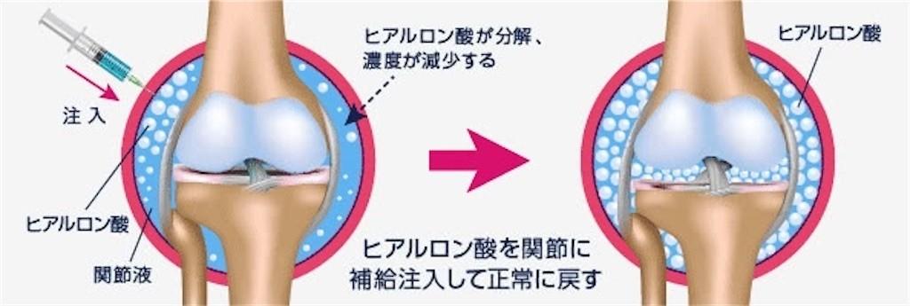 f:id:jironakayama:20210829192309j:image