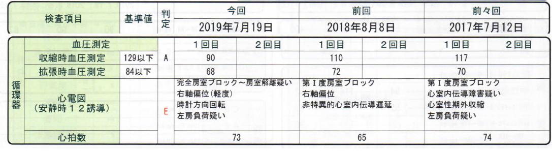 f:id:jiropon:20190804200522p:plain