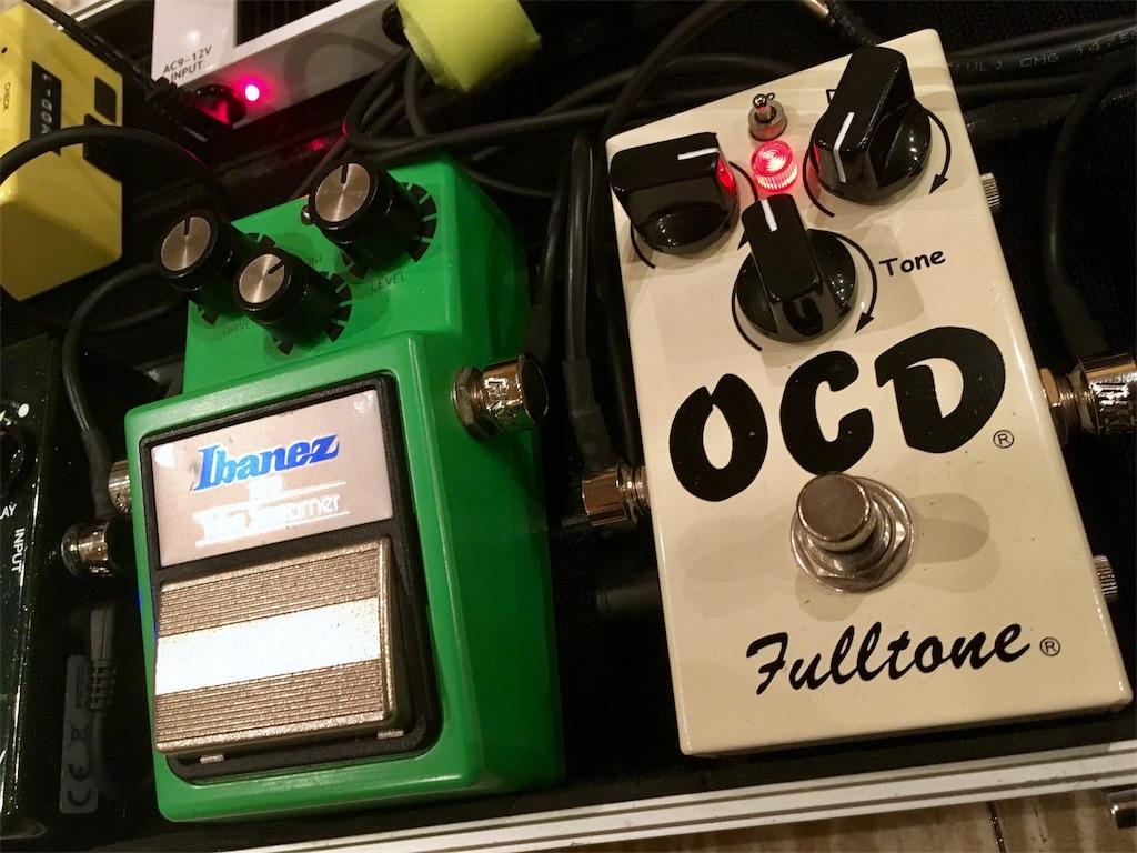 OCDとTS9