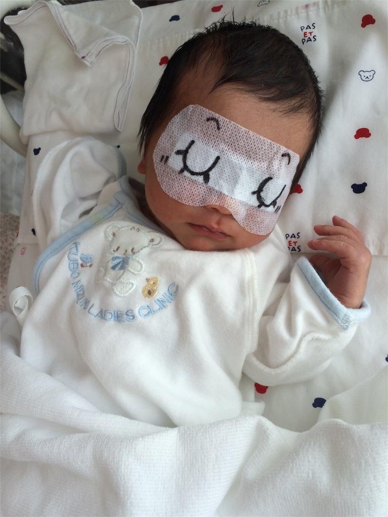 新生児 黄疸