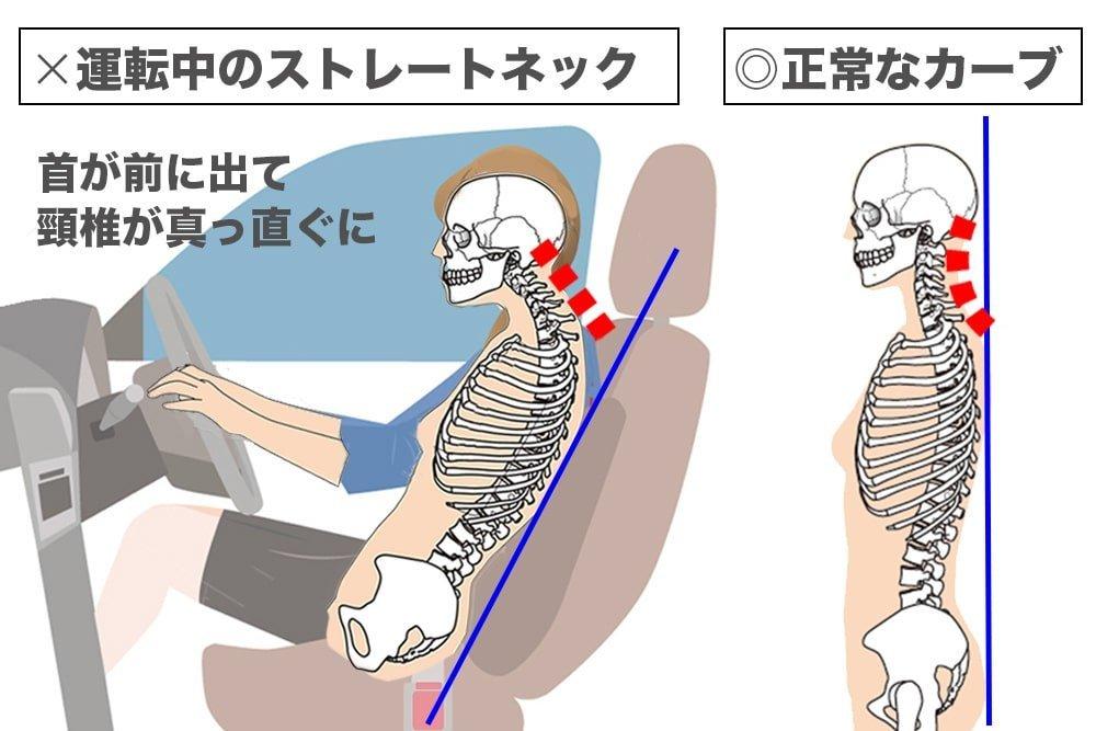 正常な頸椎のカーブとストレートネックになった頸椎の図解