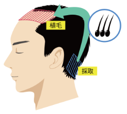 自毛植毛の仕組み