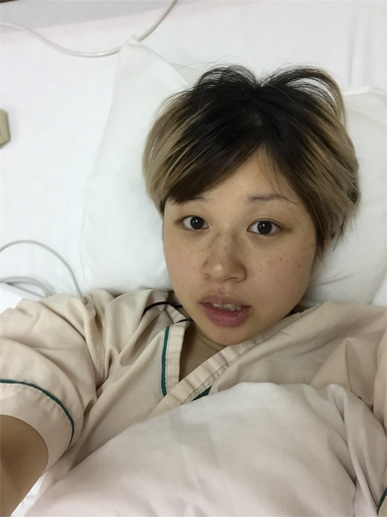 f:id:kakakamari:20170728134716j:image