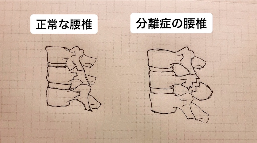 f:id:kakeru579:20191216145802j:image