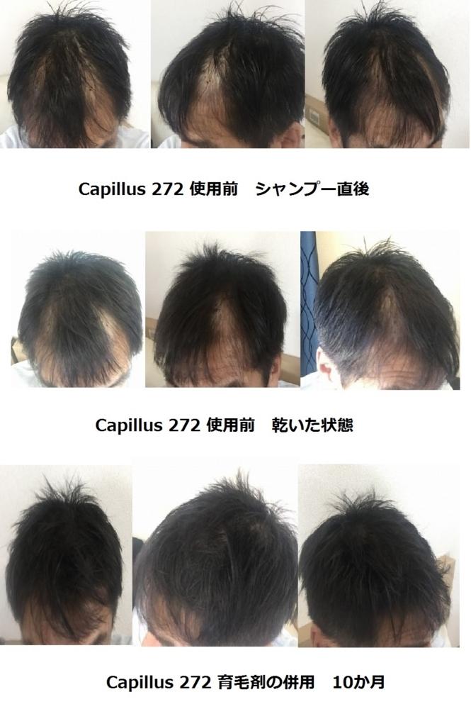 f:id:kaminonayami_net:20171106145816j:plain