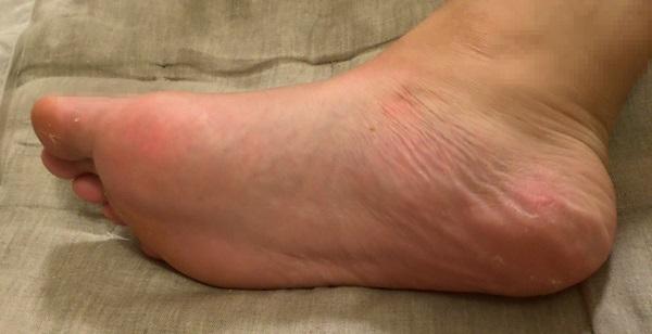 角質ケア前の足
