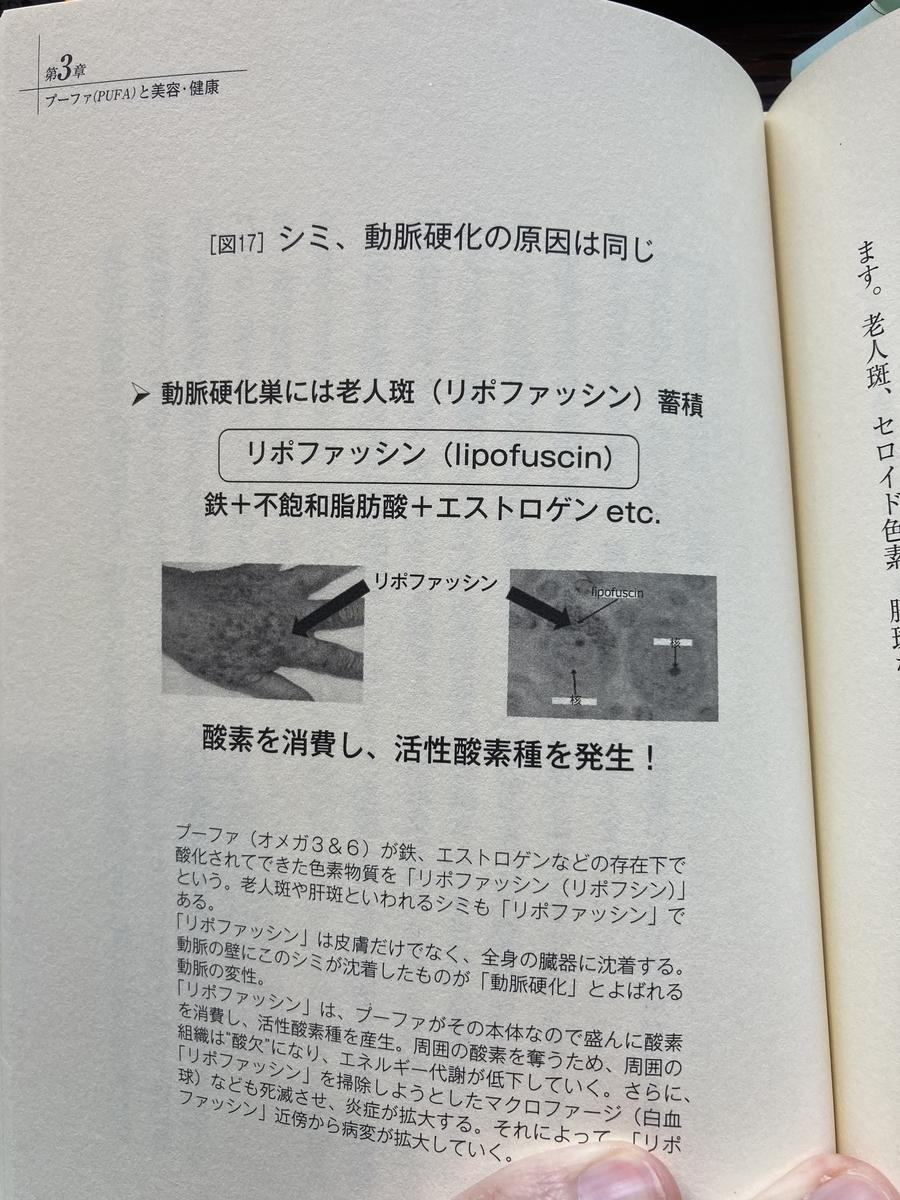 f:id:kanjuseitosyakaitojounetsu:20210418160208j:plain