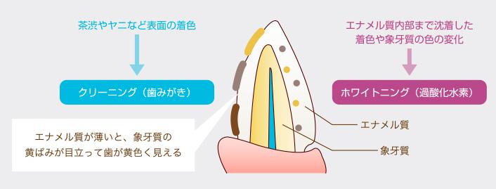 市販のホワイトニング歯磨き粉が効果ない理由
