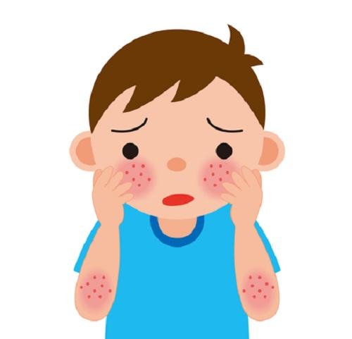 乾癬を発症してしまったらどうしたらいいの?