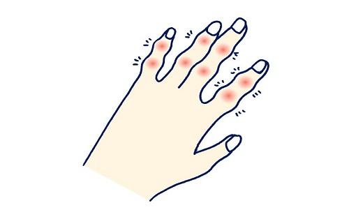 乾癬患者の多くが苦しむ関節炎・うつ病など合併症にも効果が!
