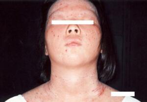 アトピー性皮膚炎女子高生2改善前