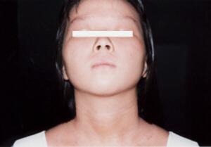 アトピー性皮膚炎女子高生2改善後