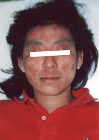 アトピー性皮膚炎改善前20代女性1