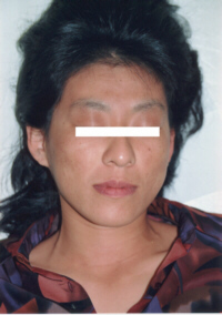 アトピー性皮膚炎改善後20代女性1