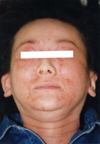 ステロイド剤のリバウンド写真