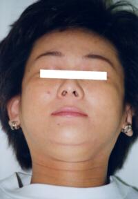 アトピー性皮膚炎改善後写真