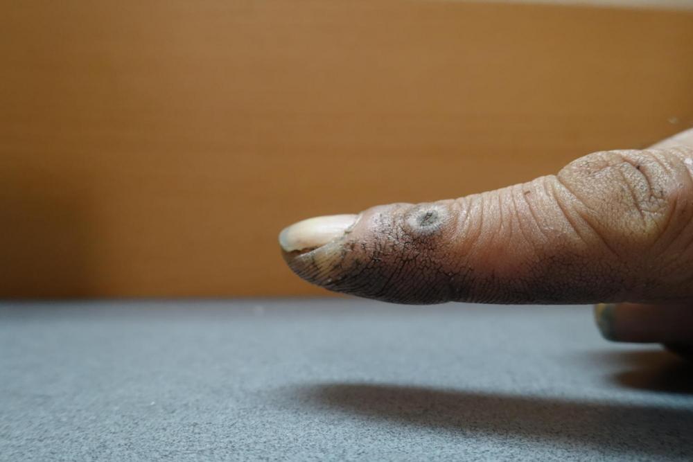 11/30(木) 「指」  Rx