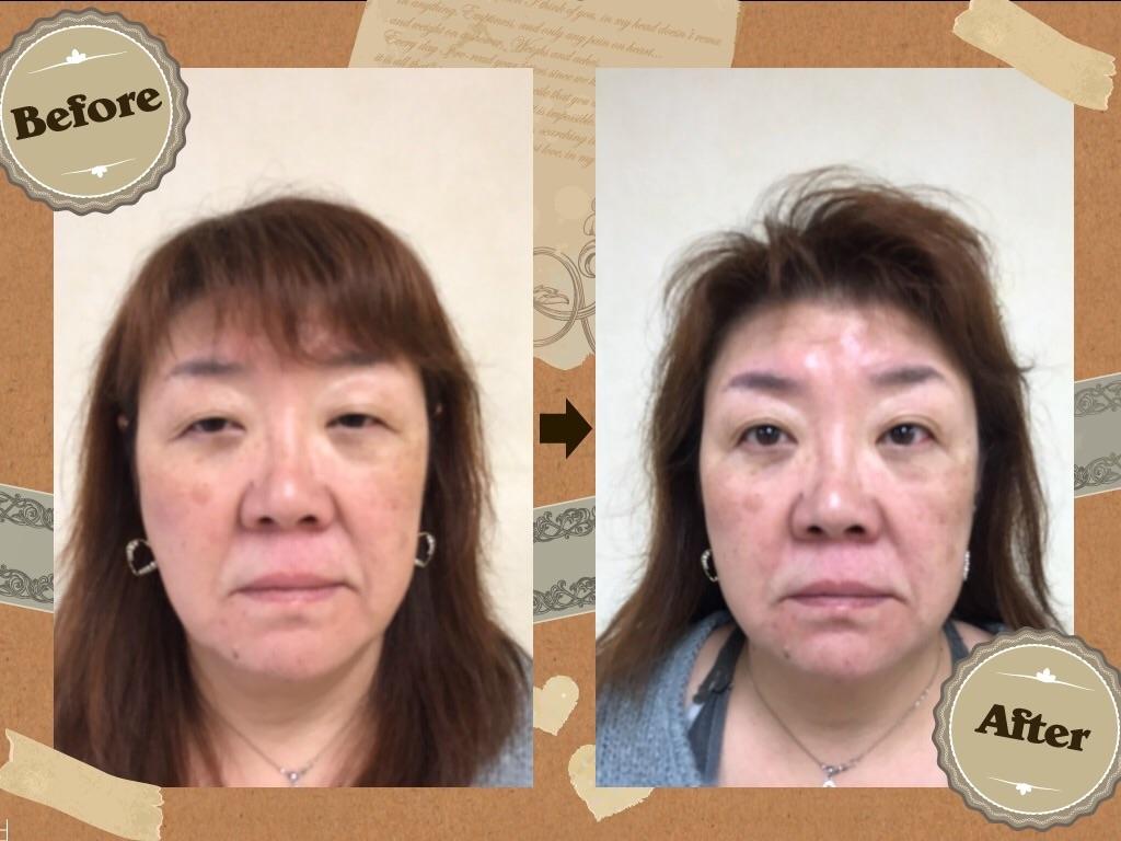 f:id:kawashima-naoya-1203346:20161207163618j:image