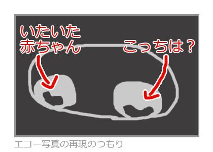 双子のエコー画像の再現