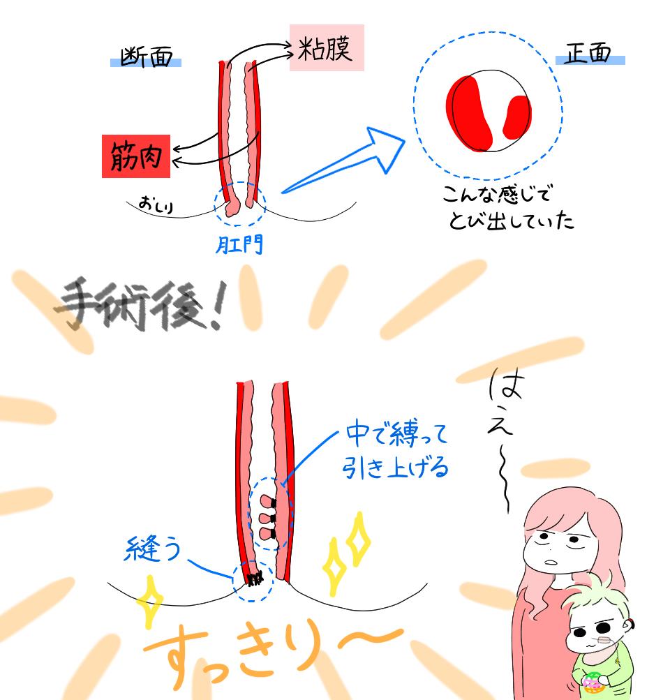 f:id:kayarimo:20190429003902j:plain
