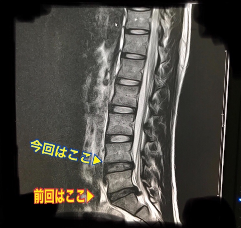 f:id:kazuki-iroiro:20200128122548j:image