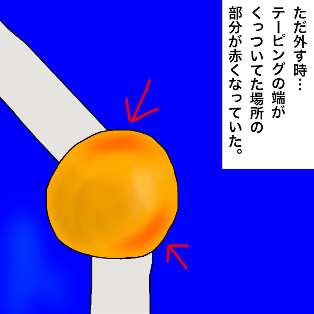 f:id:kazunablog:20170617220046p:image