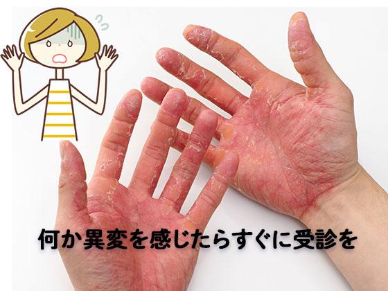 レジンアレルギーや手荒れの手