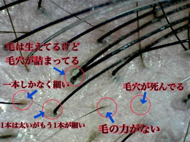 f:id:kei79:20210110175332j:plain