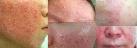脂漏性湿疹肌断食赤みかゆみ
