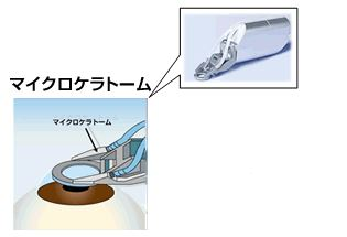 f:id:keiyamamoto413:20170616165241j:plain