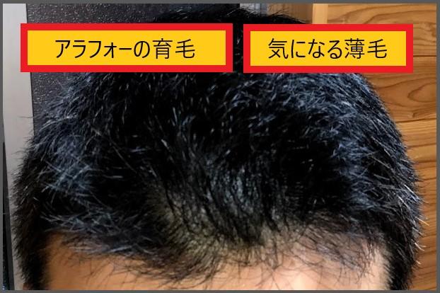 f:id:ken46abeshi:20190731191439j:plain