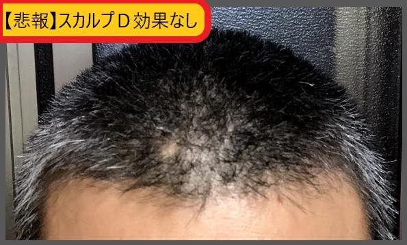 f:id:ken46abeshi:20200712104613j:plain