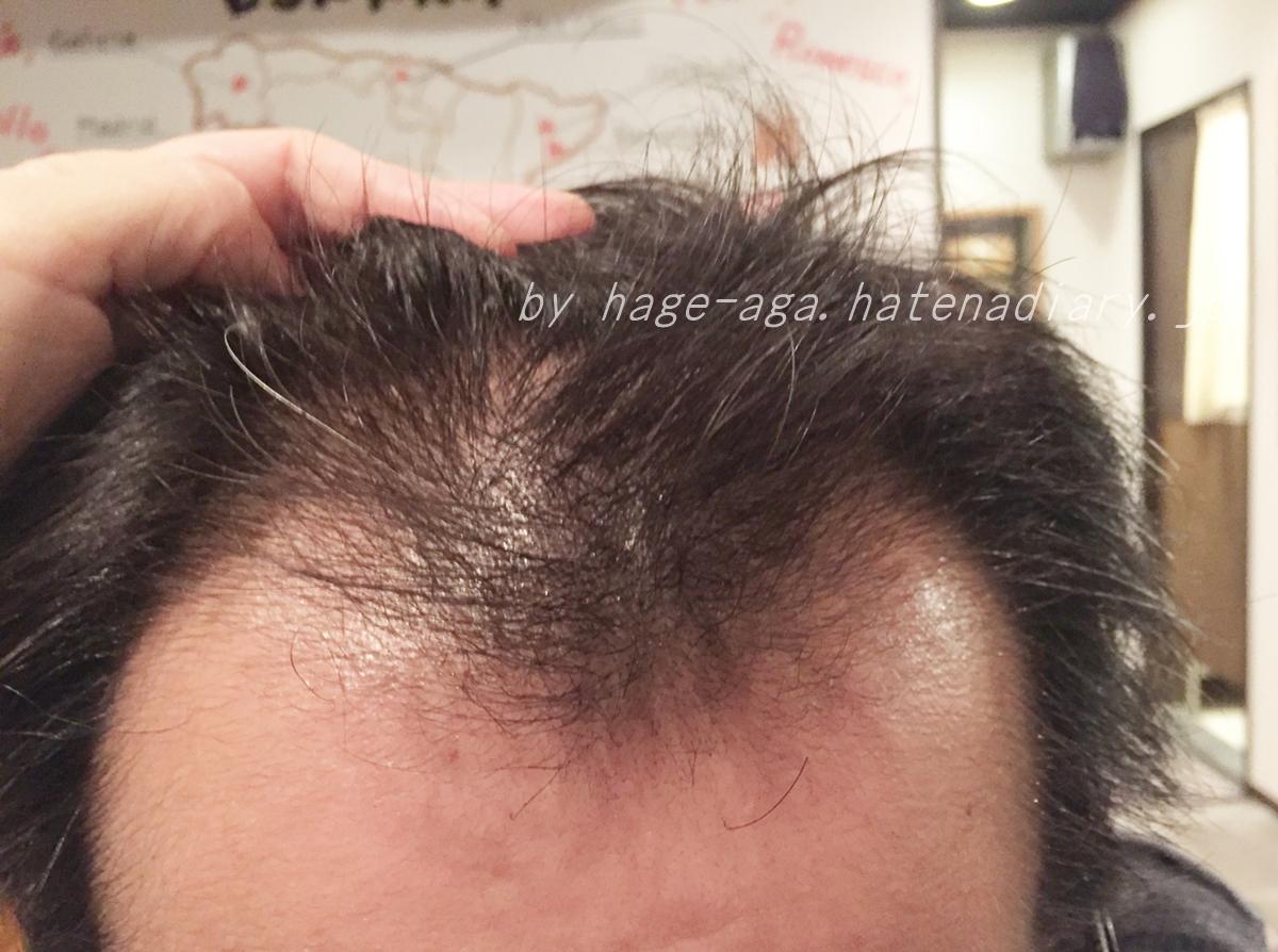 産毛が濃くなってきた1か月目画像・ハゲてるゆうや