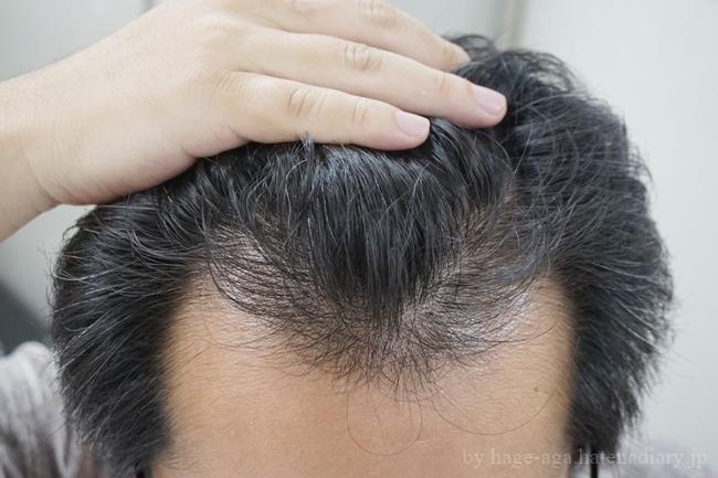 初月と比べてこんなに生えている俺の髪