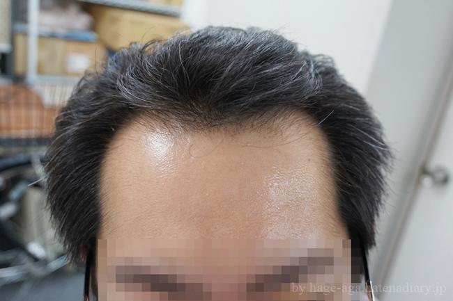 抜け毛予防のプロペシアを飲み始めて6か月目・経過画像