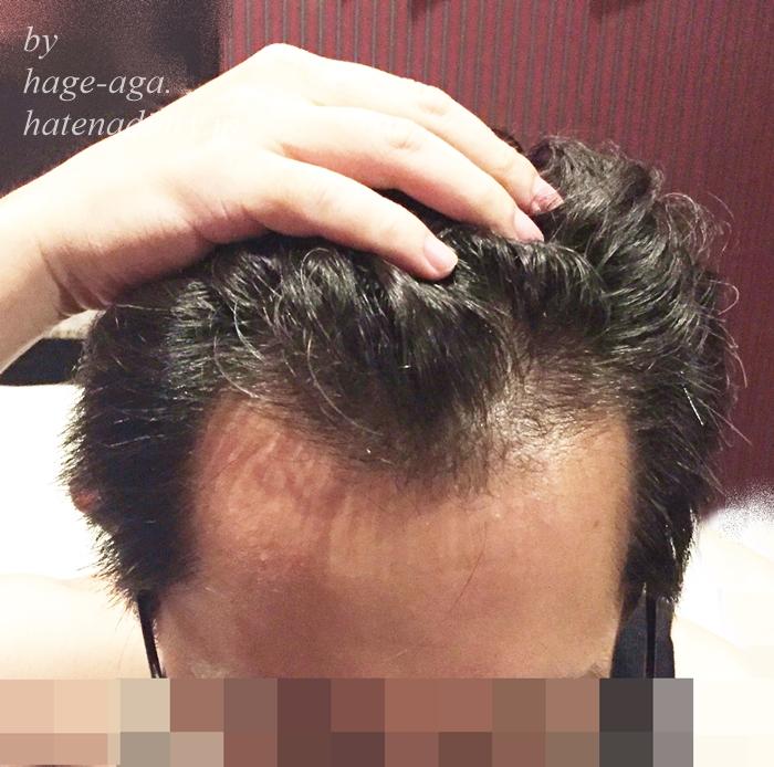 髪密度が濃い・ミノキシジル飲み始めて8か月目