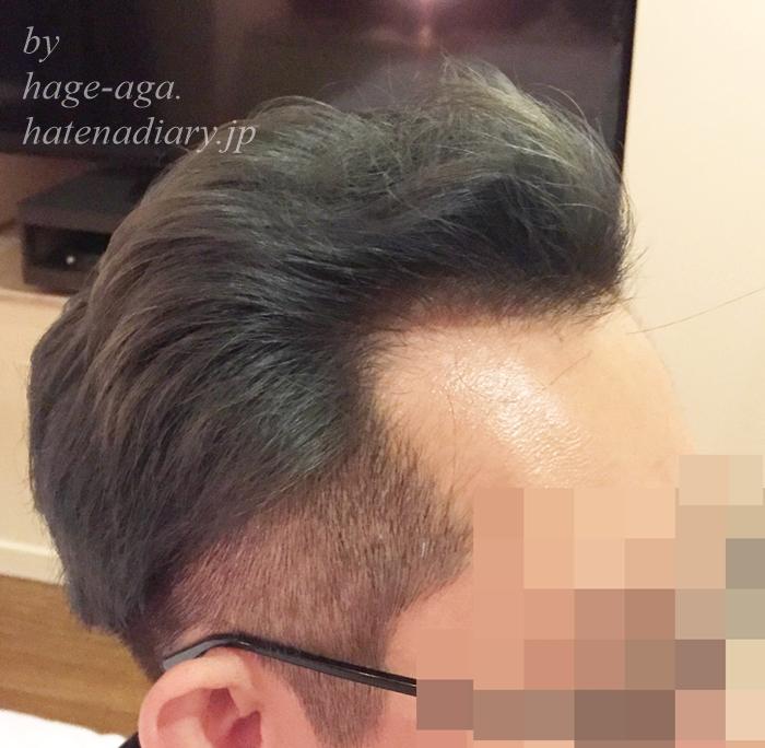 ハゲのツーブロック髪型画像・ミノキシジル飲み始めて8か月目