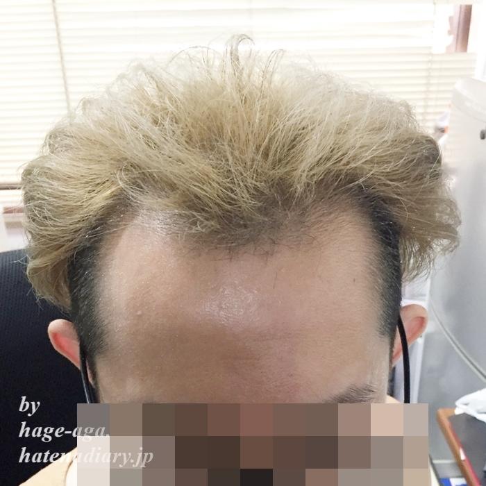 初期脱毛でふたたびM字ハゲになった。ミノキシジル飲み始めて10か月目