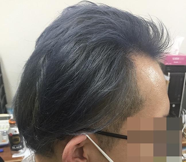 ミノキシジルを飲んだらこんなにフサフサ髪になったから大歓喜!