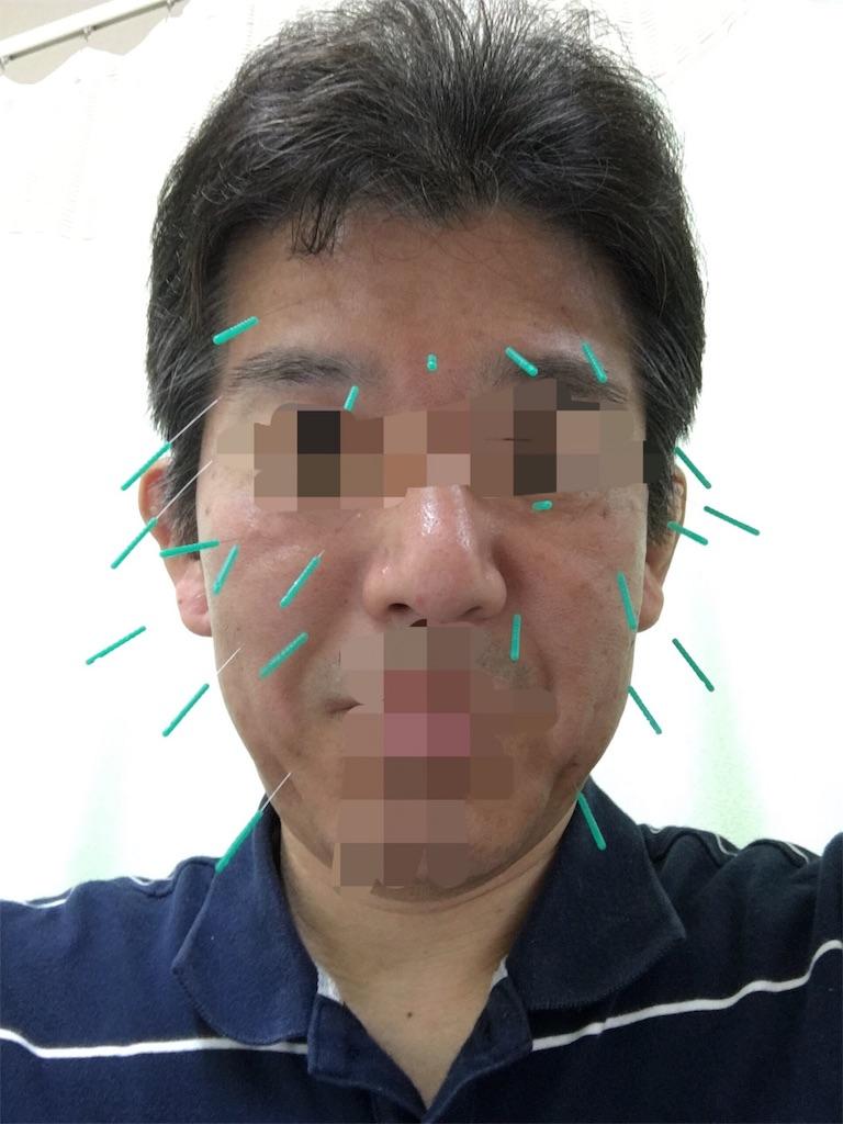 f:id:kenkou07:20190613173055j:image