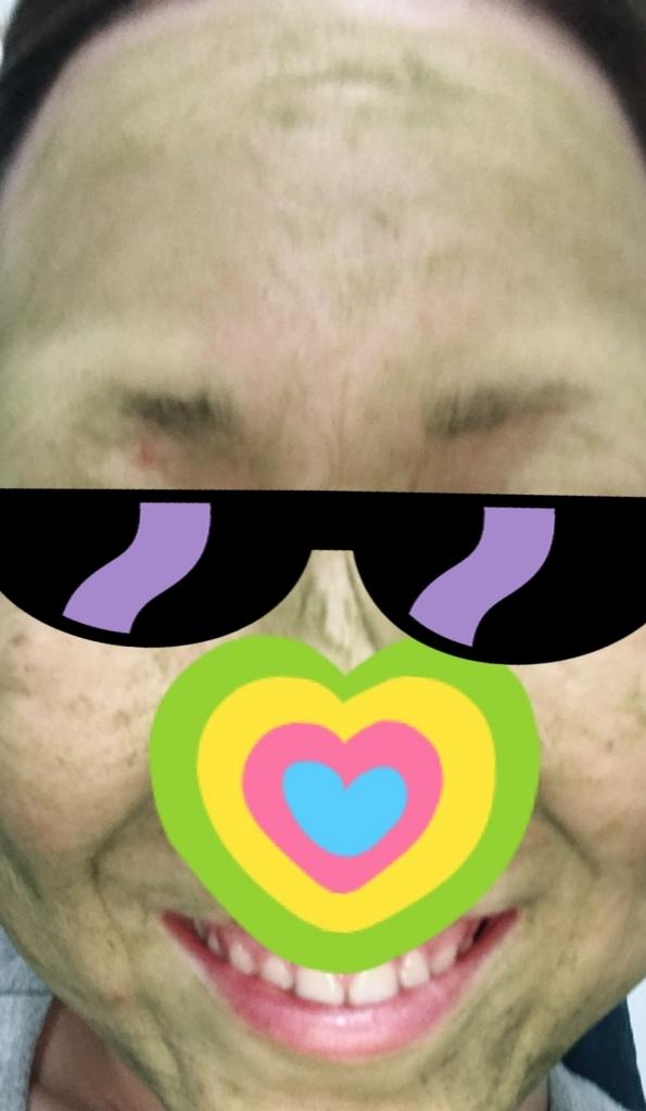 粉末緑茶を塗った顔