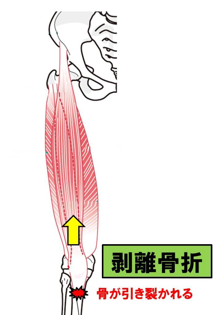 f:id:kigyou-pt:20210303084920j:plain