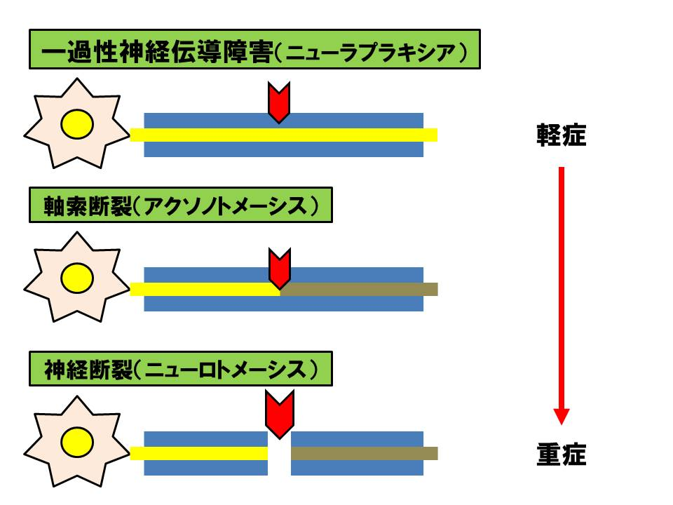 f:id:kigyou-pt:20210318083516j:plain