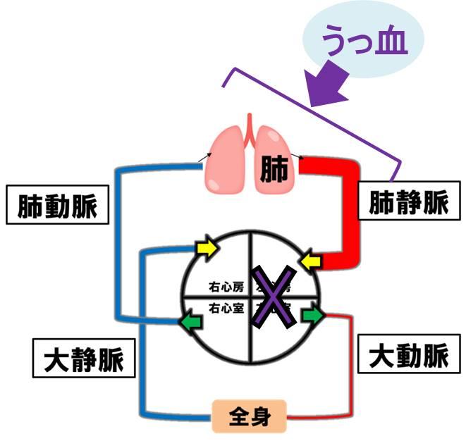 f:id:kigyou-pt:20210514082902j:plain