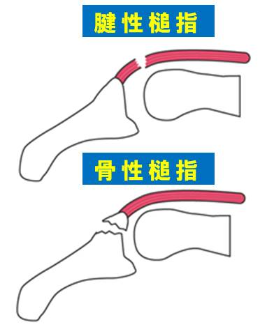 f:id:kigyou-pt:20210514085424j:plain