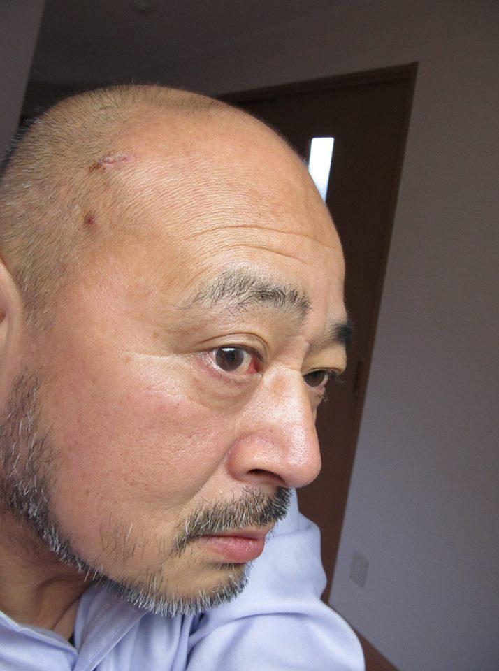 f:id:kiichiros:20180123101218j:plain