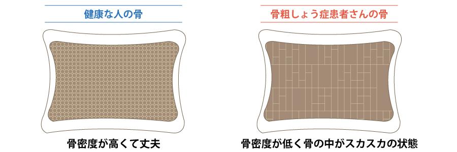 f:id:kikaijima_aojiru:20161012144947j:plain